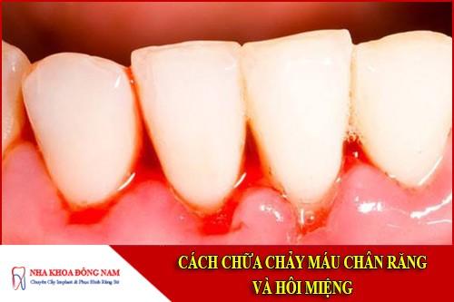 Cách chữa chảy máu chân răng và hôi miệng