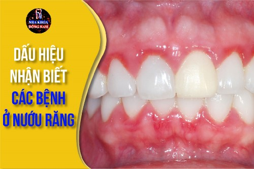 dấu hiệu nhận biết các bệnh ở nướu răng