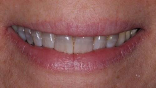 răng nhiễm màu kháng sinh