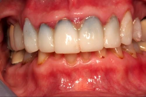 đen viền nướu răng