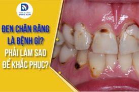 Đen chân răng là bệnh gì? Phải làm sao để khắc phục?