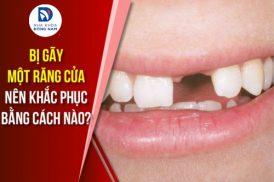 Bị gãy một răng cửa nên khắc phục bằng cách nào?