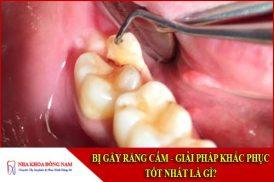 Bị gãy răng cấm - Giải pháp khắc phục tốt nhất là gì?