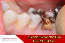 Gãy răng hàm còn chân răng khắc phục thế nào?Gãy răng hàm còn chân răng khắc phục thế nào?