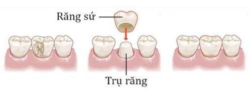 kỹ thuật bọc răng sứ