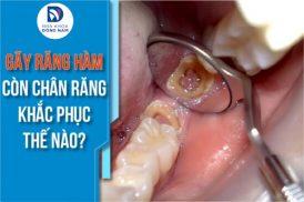 Gãy răng hàm còn chân răng khắc phục thế nào?