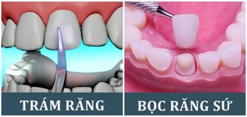 phương pháp làm răng khểnh