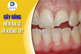 Gãy răng nên ăn gì và kiêng gì?