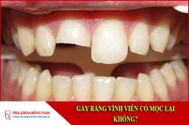 Gãy răng vĩnh viễn có mọc lại không?