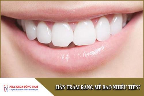 Hàn trám răng mẻ mất bao nhiêu tiền?