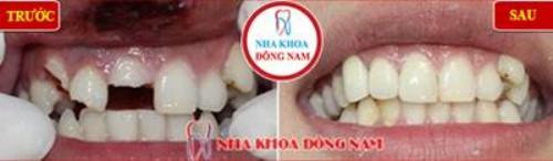 bọc sứ cho răng gãy mẻ