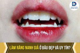 Làm răng nanh giả ở đâu đẹp và uy tín tại TPHCM