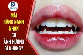 Mài răng nanh nhọn có ảnh hưởng gì không