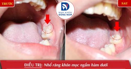 nhổ răng khôn mọc ngầm hàm dưới