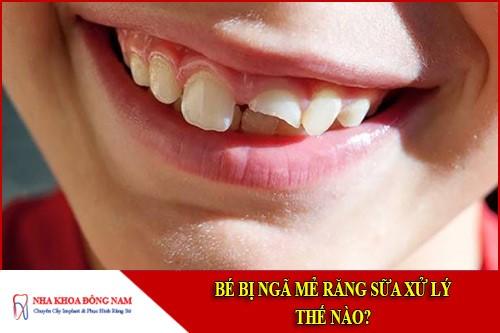Bé bị ngã mẻ răng sữa xử lý thế nào?