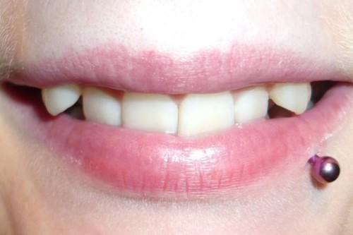 làm sao để có răng khểnh