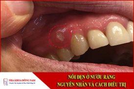 Nổi đẹn ở nướu răng chữa bằng cách nào?