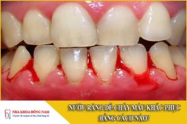 Nướu răng dễ chảy máu khắc phục thế nào?