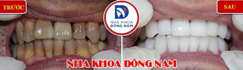 bọc sứ cho răng bị nhiễm màu