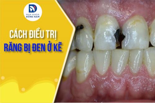 Cách điều trị răng bị đen ở kẽ