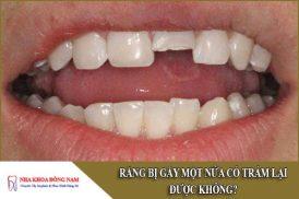 Răng bị gãy một nửa có trám lại được không?