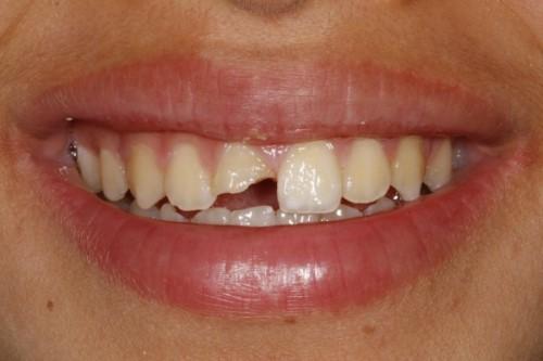 răng bị gãy gây mất thẩm mỹ