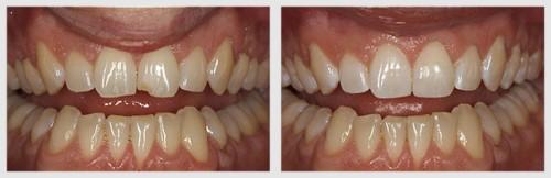 trám răng mẻ vỡ