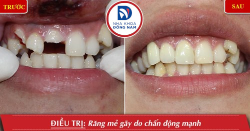 phục hình răng gãy bằng bọc răng sứ
