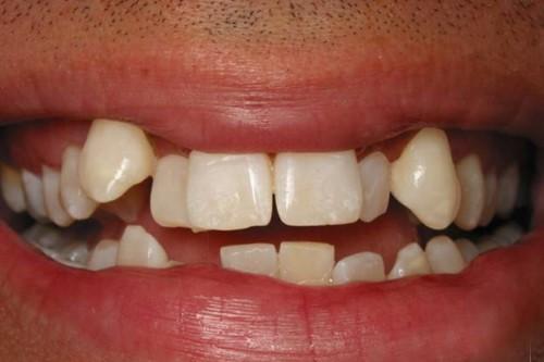 răng lệch lạc