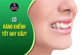 có răng khểnh tốt hay xấu