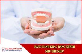 Răng nanh và răng khểnh khác nhau như thế nào