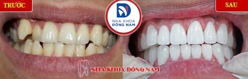 bọc sứ cho răng khểnh