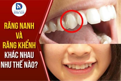 Răng nanh khác răng khểnh như thế nào