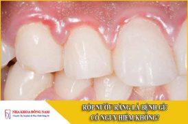 Rộp nướu răng là bệnh gì? Có nguy hiểm không?