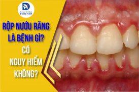 rộp nướu răng là bệnh gì có nguy hiểm không