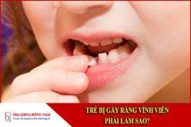 Trẻ bị gãy răng vĩnh viễn phải làm sao?