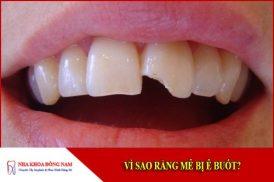 Vì sao răng mẻ bị ê buốt?