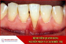 Bệnh viêm quanh răng: Nguyên nhân và cách điều trị