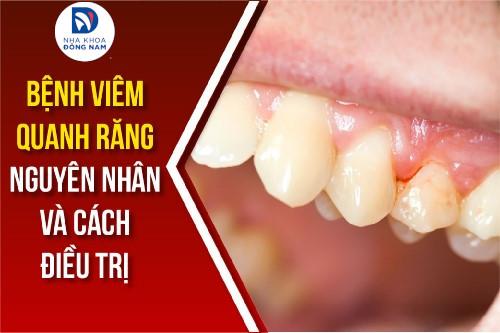 bệnh viêm quanh răng nguyên nhân và cách điều trị