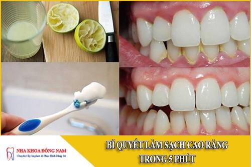 Bí quyết làm sạch cao răng trong 5 phút