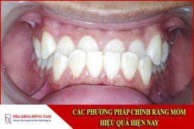 Các phương pháp Chỉnh Răng Móm hiệu quả hiện nay