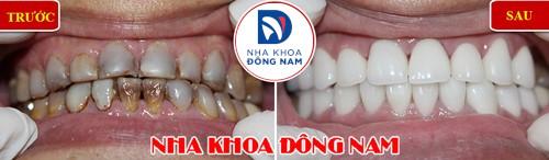 bọc răng sứ thẩm mỹ cho răng bị nhiễm màu nặng