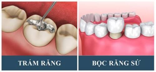 phương pháp phục hình răng bị sâu