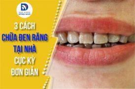 3 cách chữa đen răng tại nhà cực kỳ đơn giản