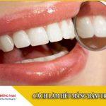 Cách làm hết mảng bám trên răng trong vòng 30 phút
