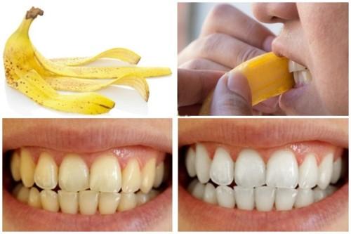 làm sạch mảng bám trên răng với vỏ chuối