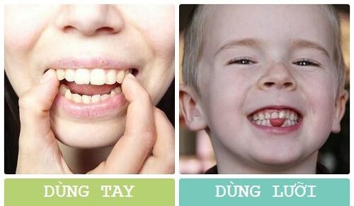 Cách làm răng đều