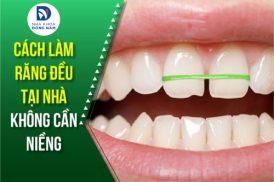 Cách làm răng đều tại nhà không cần niềng