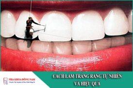 5 Cách làm răng trắng tự nhiên và hiệu quả