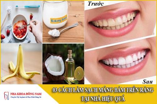 3 Cách làm sạch mảng bám trên răng tại nhà